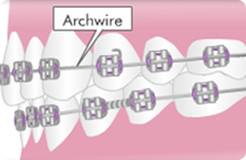 archwire-1
