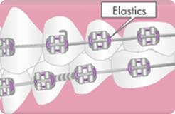 elastic-1