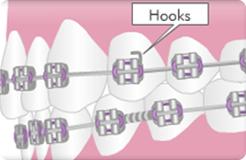hook-1